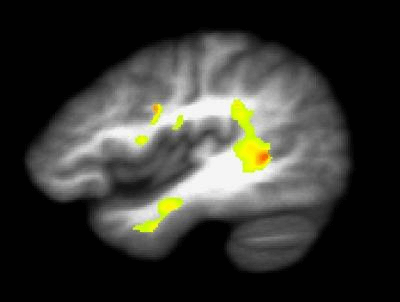 marijuana brain damage